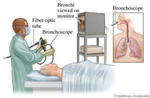 bronchoscopy-webmd